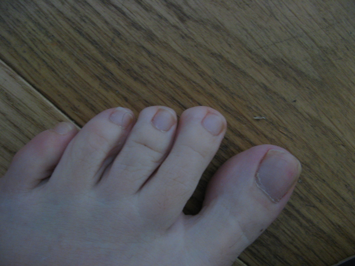 This is a photograph of my toes nearly four years after fixing my low body temperature and increasing my vitamin C intake.