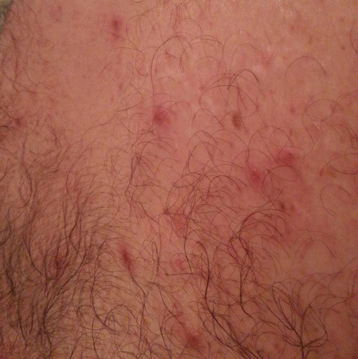 Tiny pimple-like clusters connected by silvery trails like these are where mites tunnel under the outer skin and leave an itchy, irritating rash.