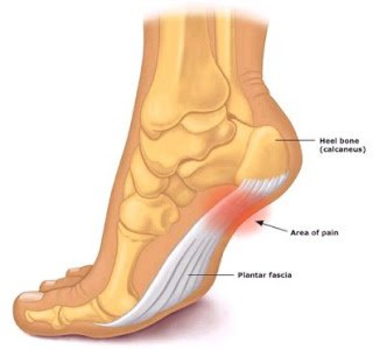 Human foot highlighting where plantar fasciitis pain occurs