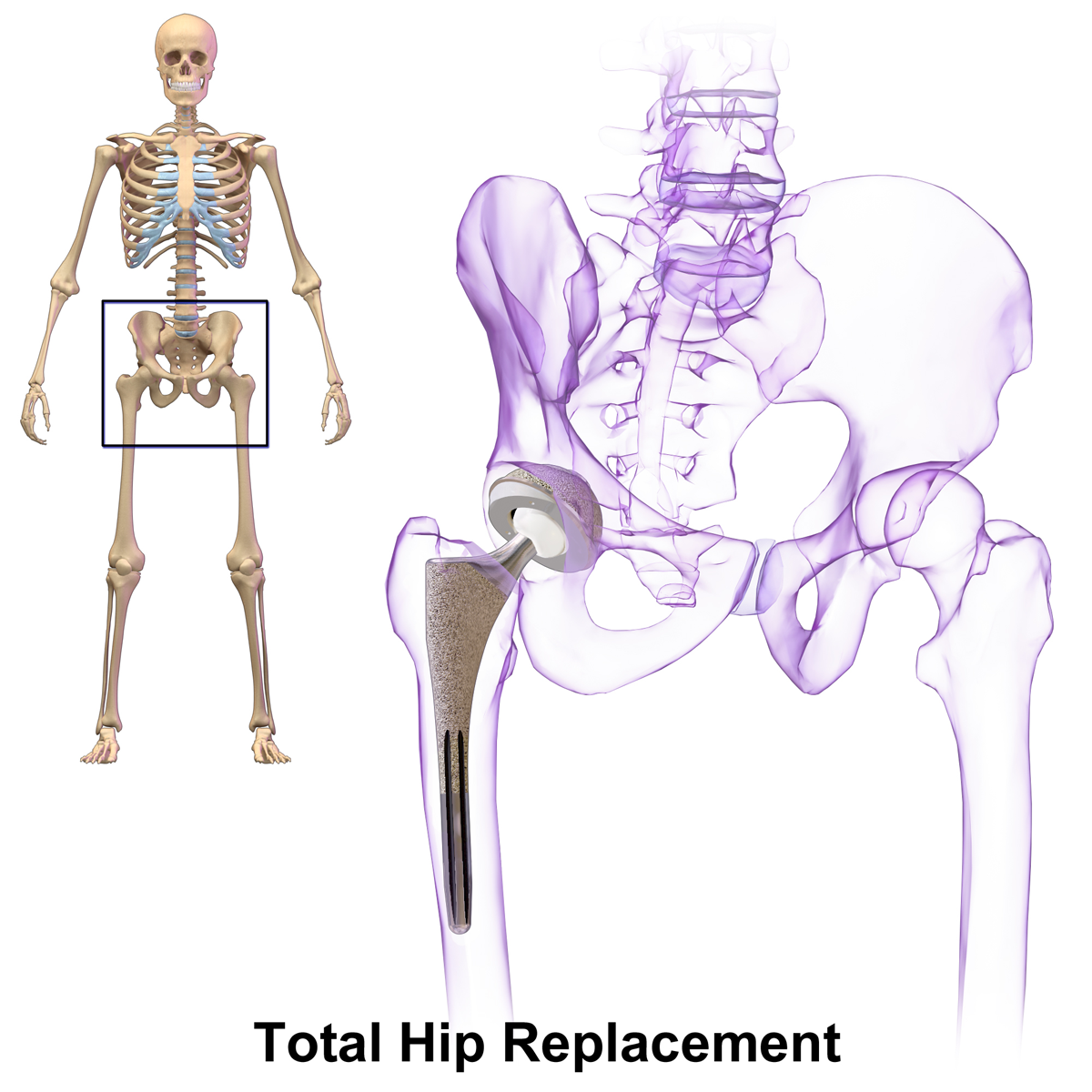 Diagram of Total Hip Replacement