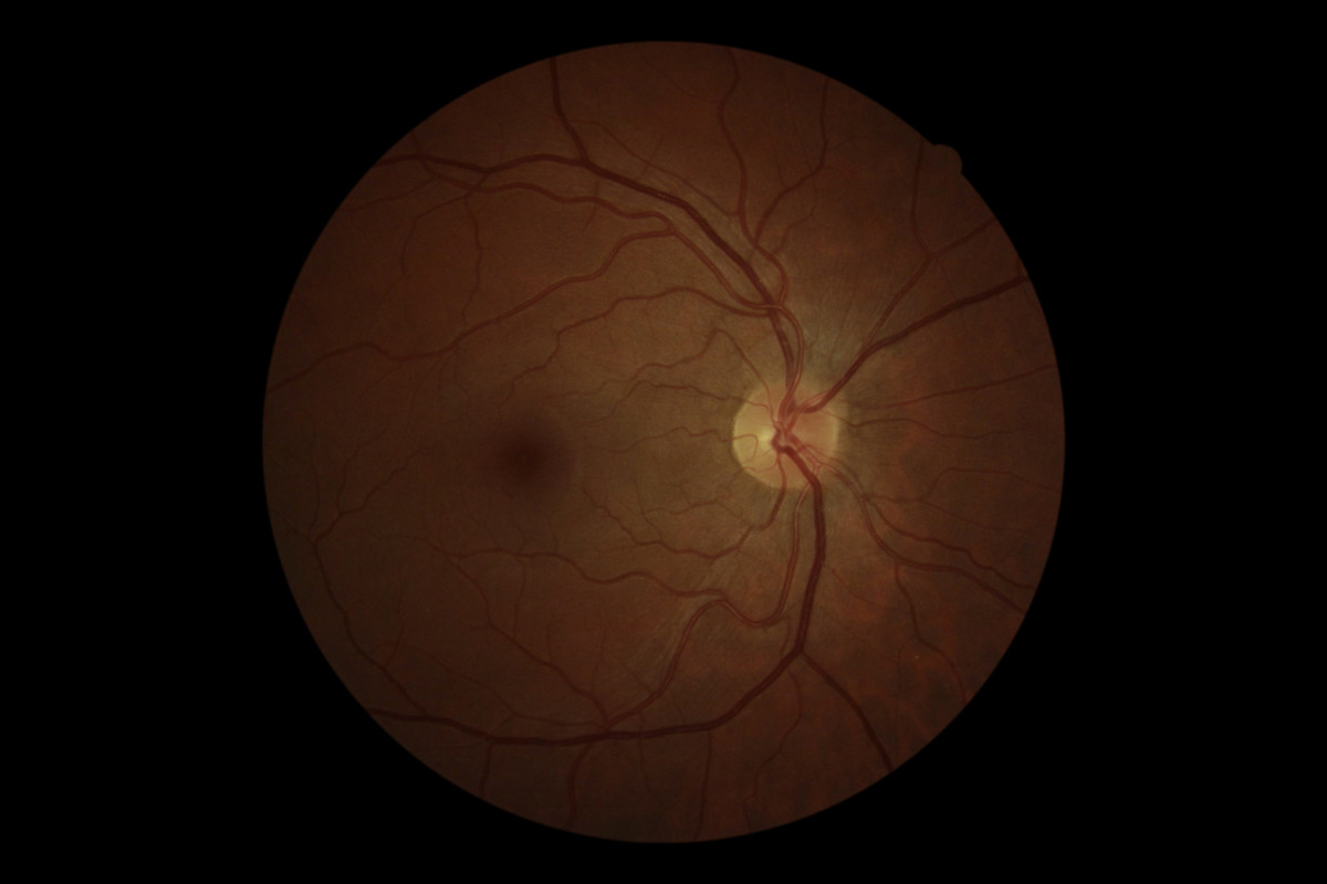 A photo of a digital scan of the retina