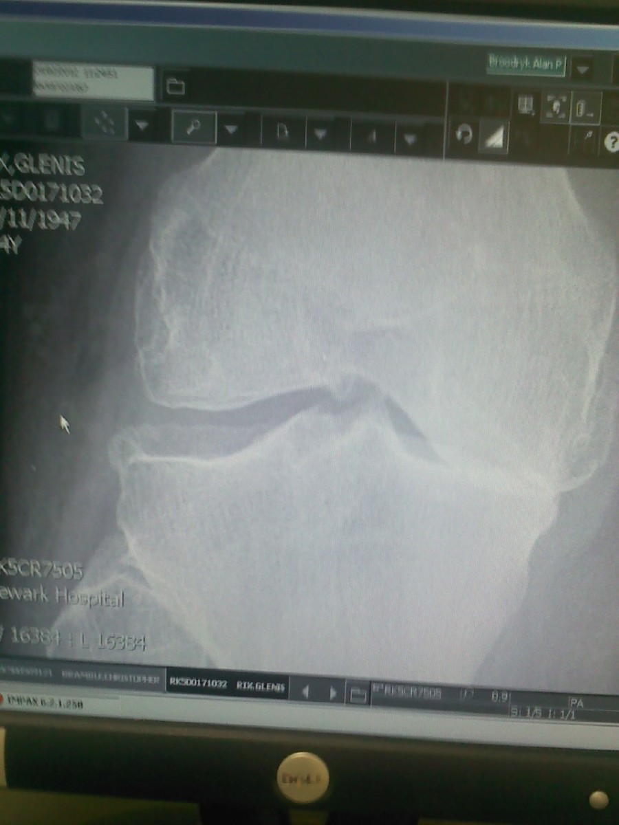 An X-ray of my knee showing that cartilage has  totally worn away on one side, resulting in bone-on-bone arthritis.