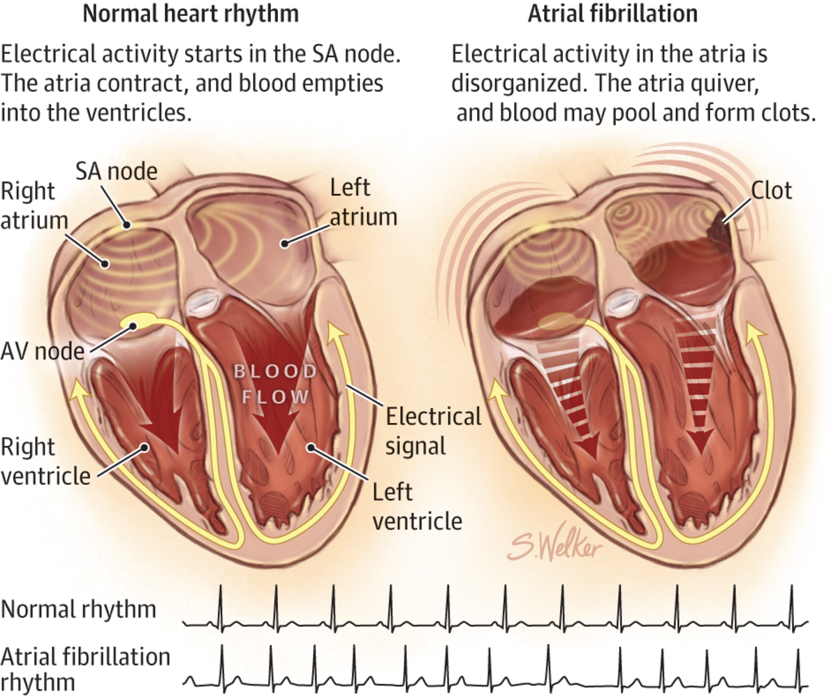 Atrial fibrillation occurs when the top two chambers (atria) beat irregularly (i.e. not in rhythm with the rest of the heart).