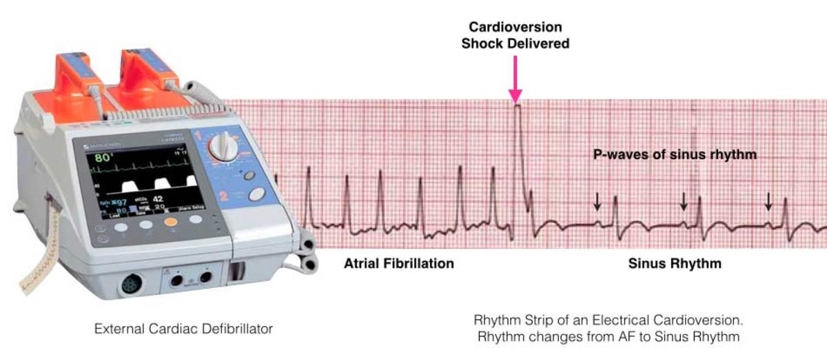 ECG showing the shock delivered in a cardioversion procedure in an attempt to restore regular heartbeats.