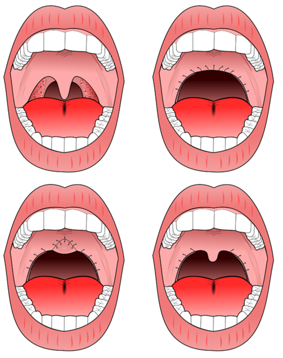 Illustration of corrective surgery to stop sleep apnea