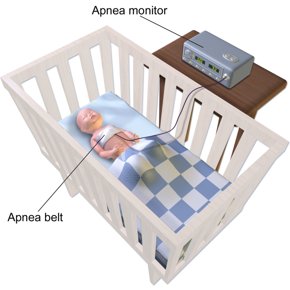 An illustration depicting a sleep apnea monitor