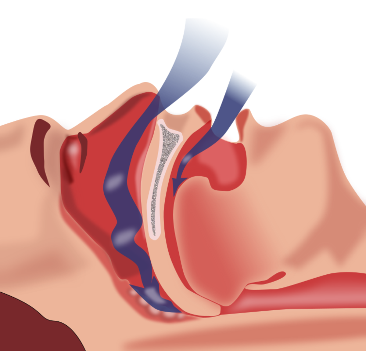 Sleep Apnea: Do You Have It? Causes, Symptoms, and Diagnosis