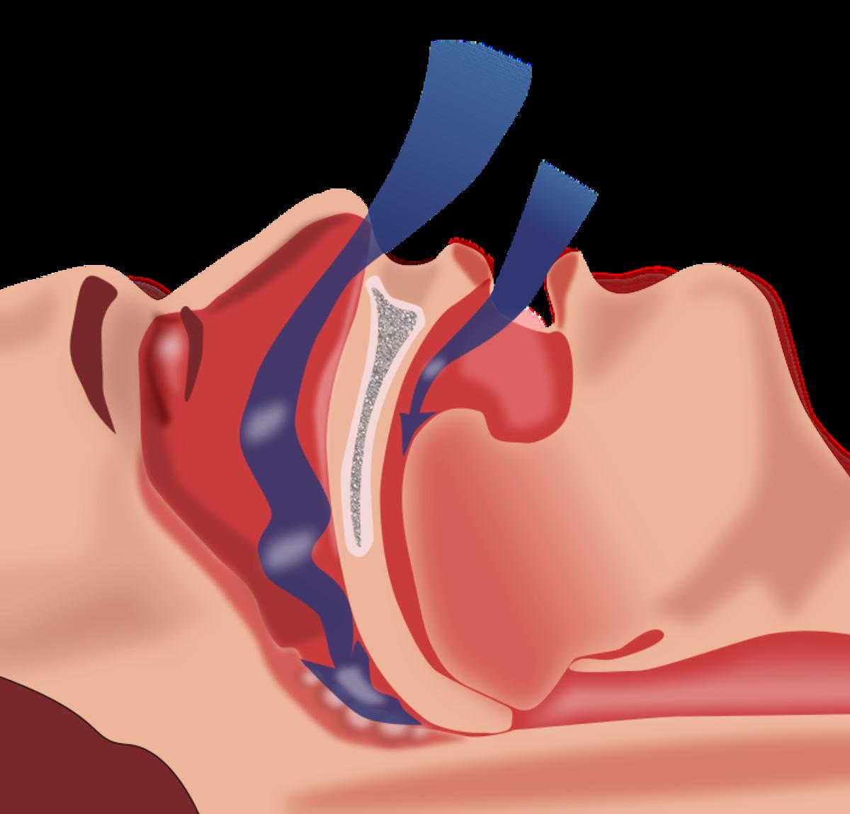 Sleep Apnea: Do You Have It? Causes, Symptoms, and Diagnosis