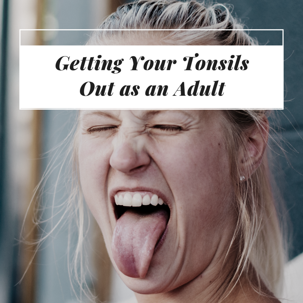 My Tonsillectomy: Getting Your Tonsils Out as an Adult
