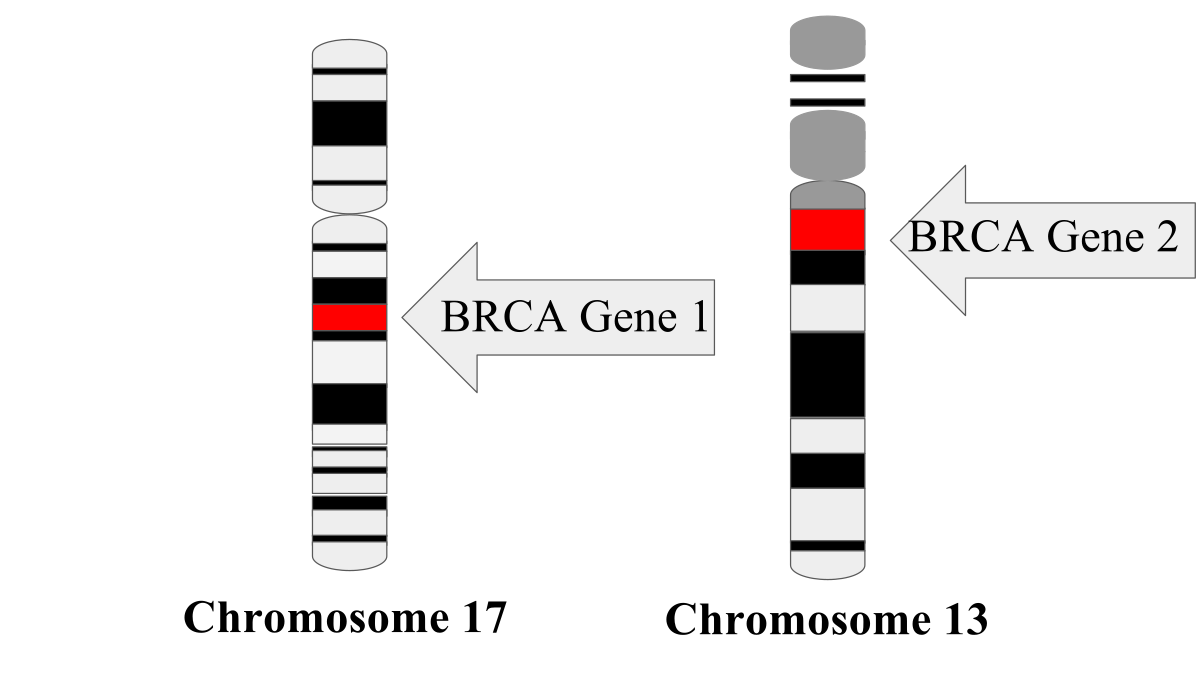 Location of BRCA genes on chromosome 17 and chromosome 13.