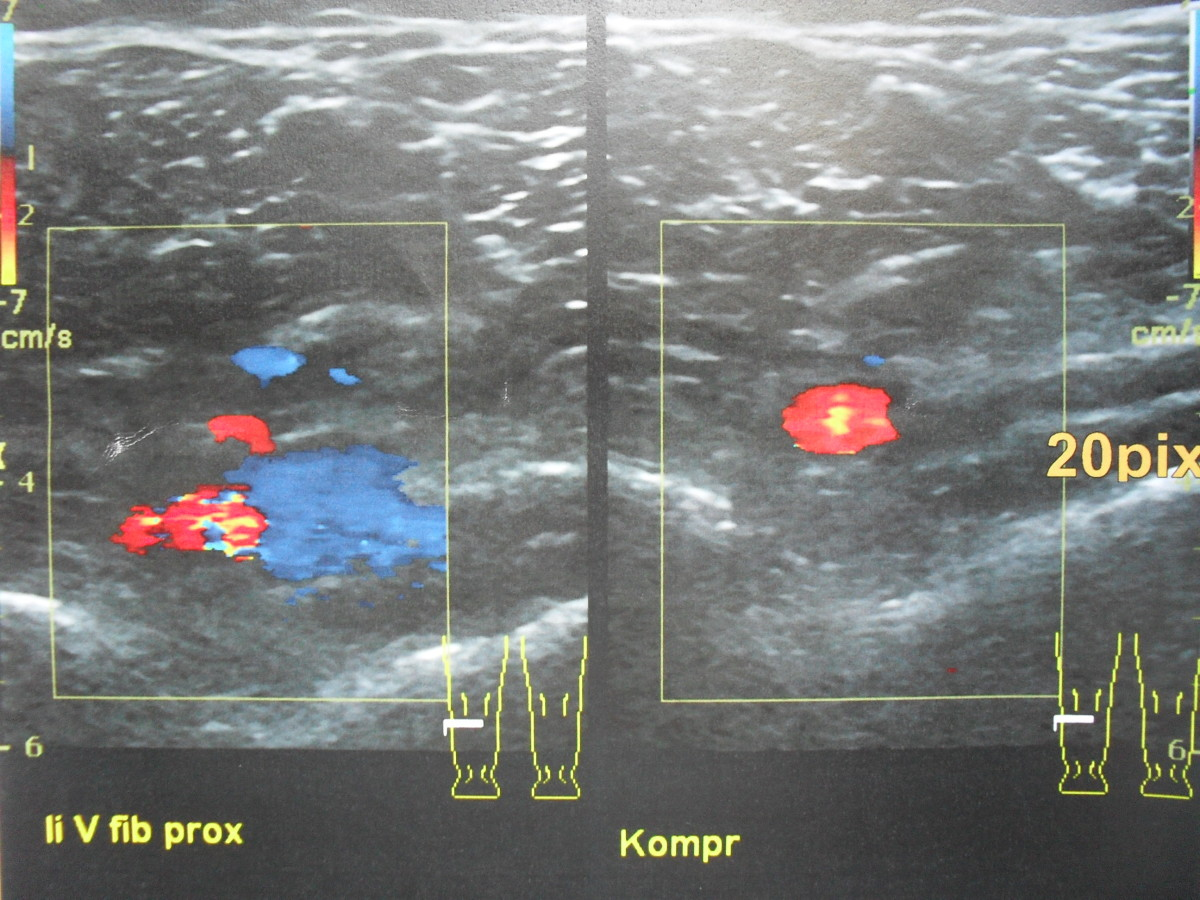 Detection of DVT by ultrasound.