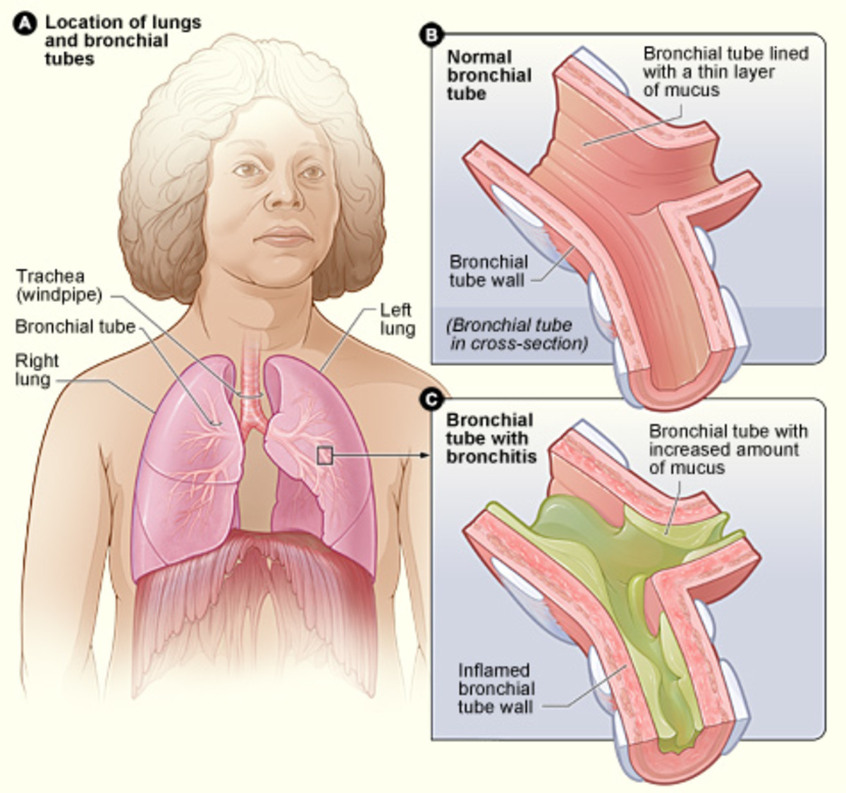 English: Figure A shows the location of the lungs and bronchial tubes in the body. Figure B is an enlarged, detailed view of a normal bronchial tube. Figure C is an enlarged, detailed view of a bronchial tube with bronchitis. The tube is inflamed and