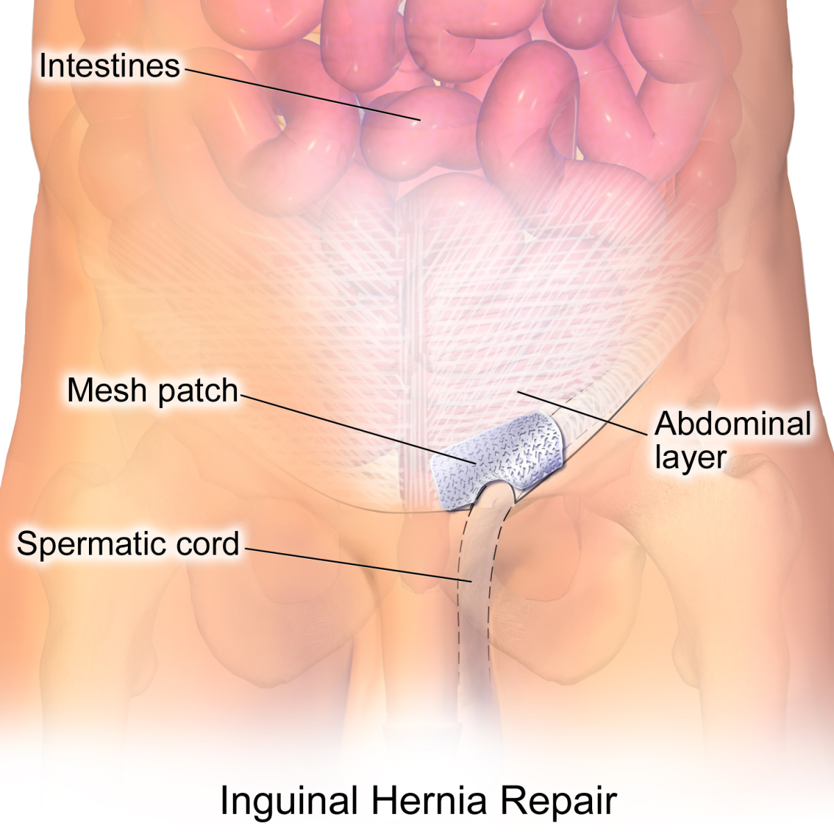 Hernias are usually fixed by putting the protruding tissue back in place and reinforcing the opening with a sterile mesh.