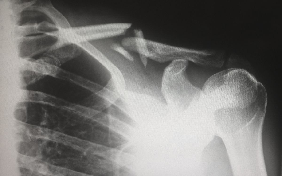 Question: Does PMR Show Up on an X Ray? Answer: PMR doesn't, but inflammation does. Still, doctors have other  more accurate ways of checking for inflammation.