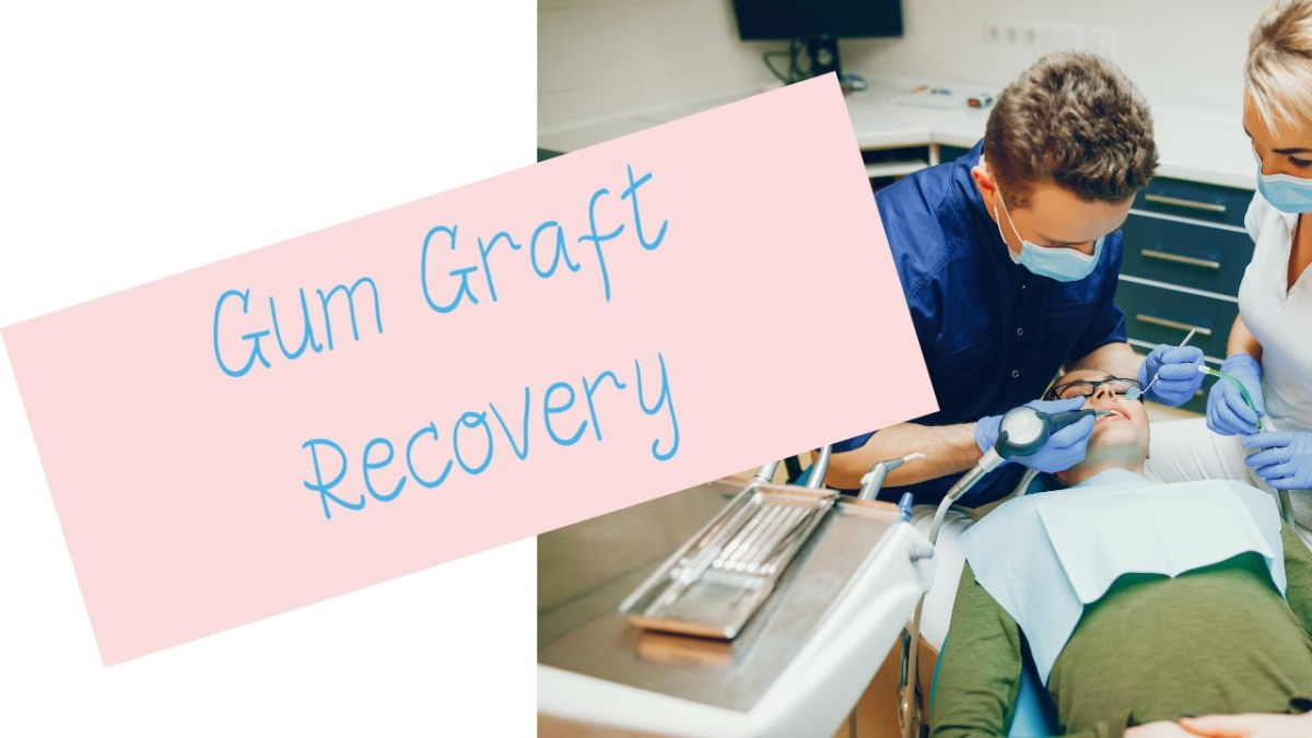 How Long Does It Take to Heal From Gum Graft Surgery?