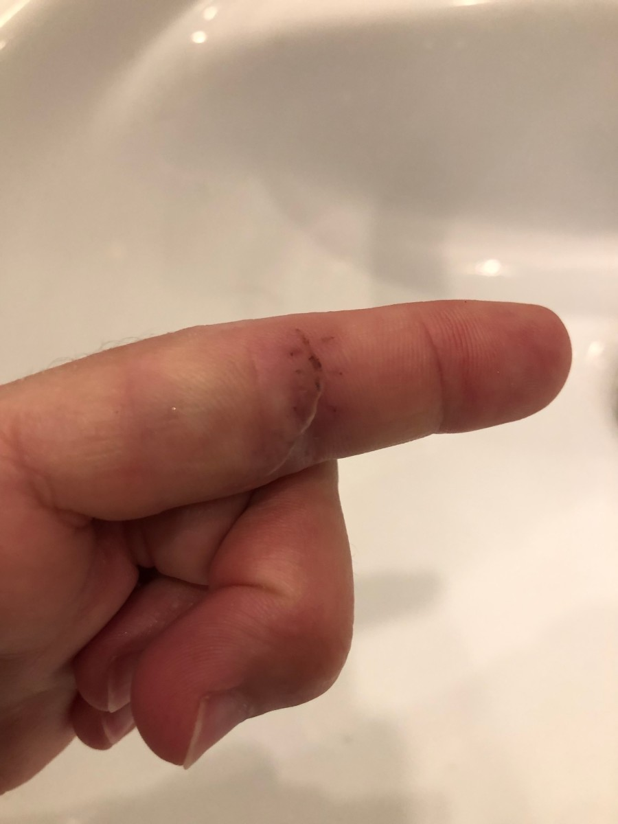This is a photo of my finger shortly after the stitches were removed.