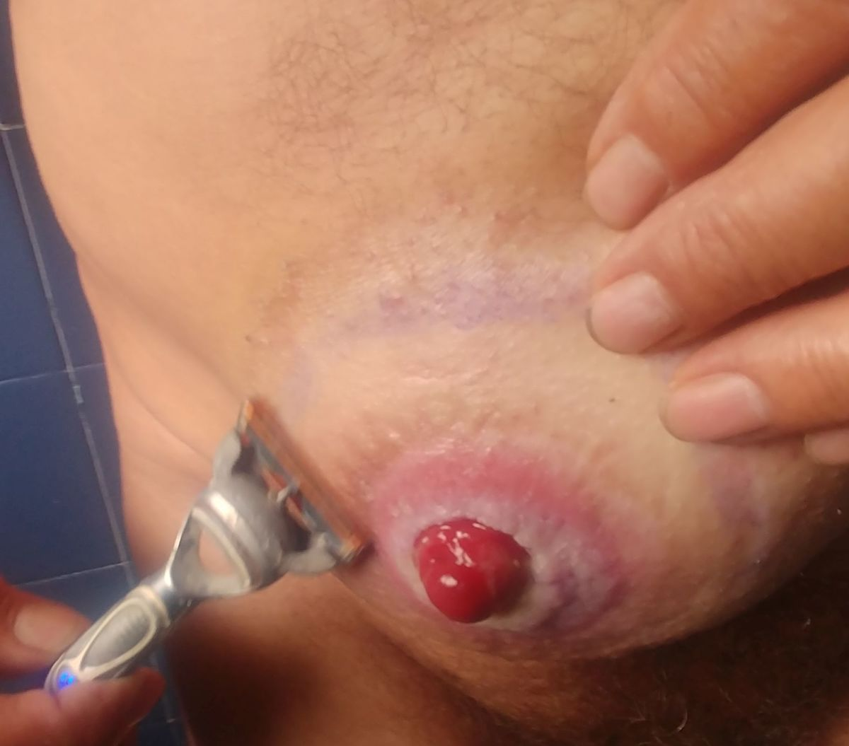 Shave around the stoma