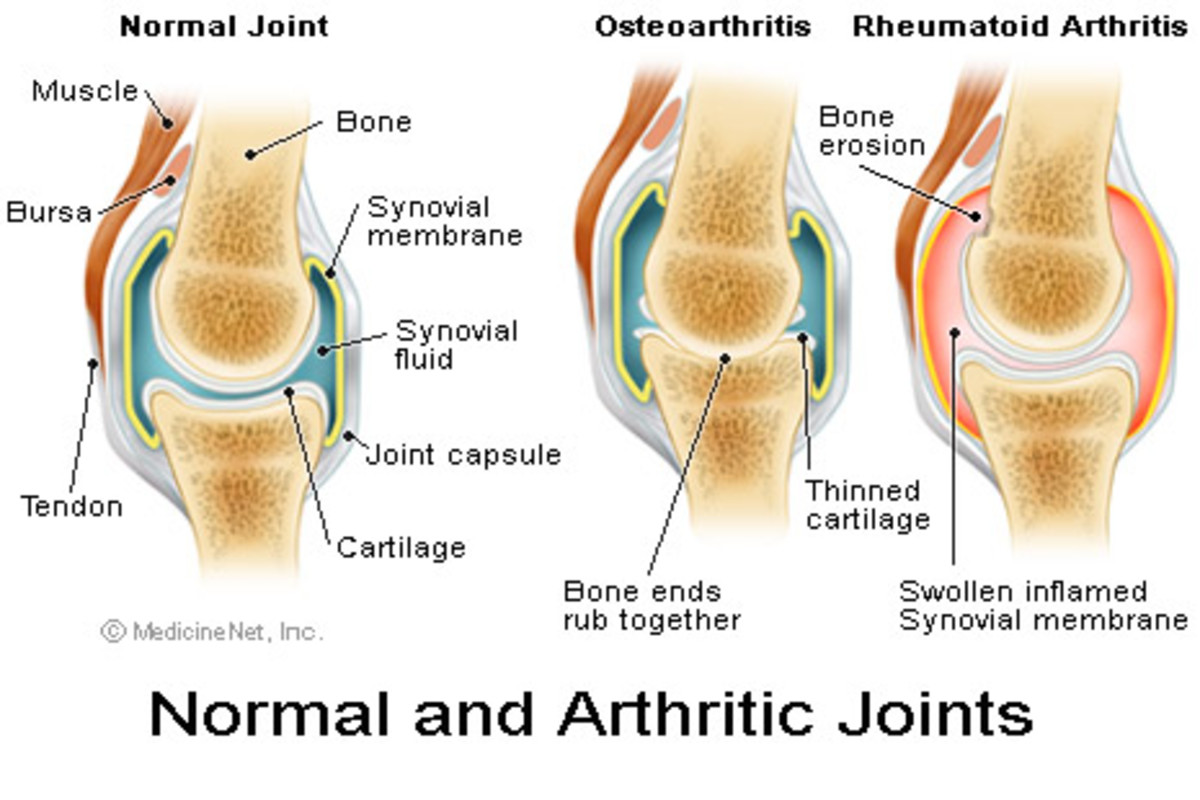 Living With Spinal, Shoulder, Hand and Wrist Osteoarthritis.