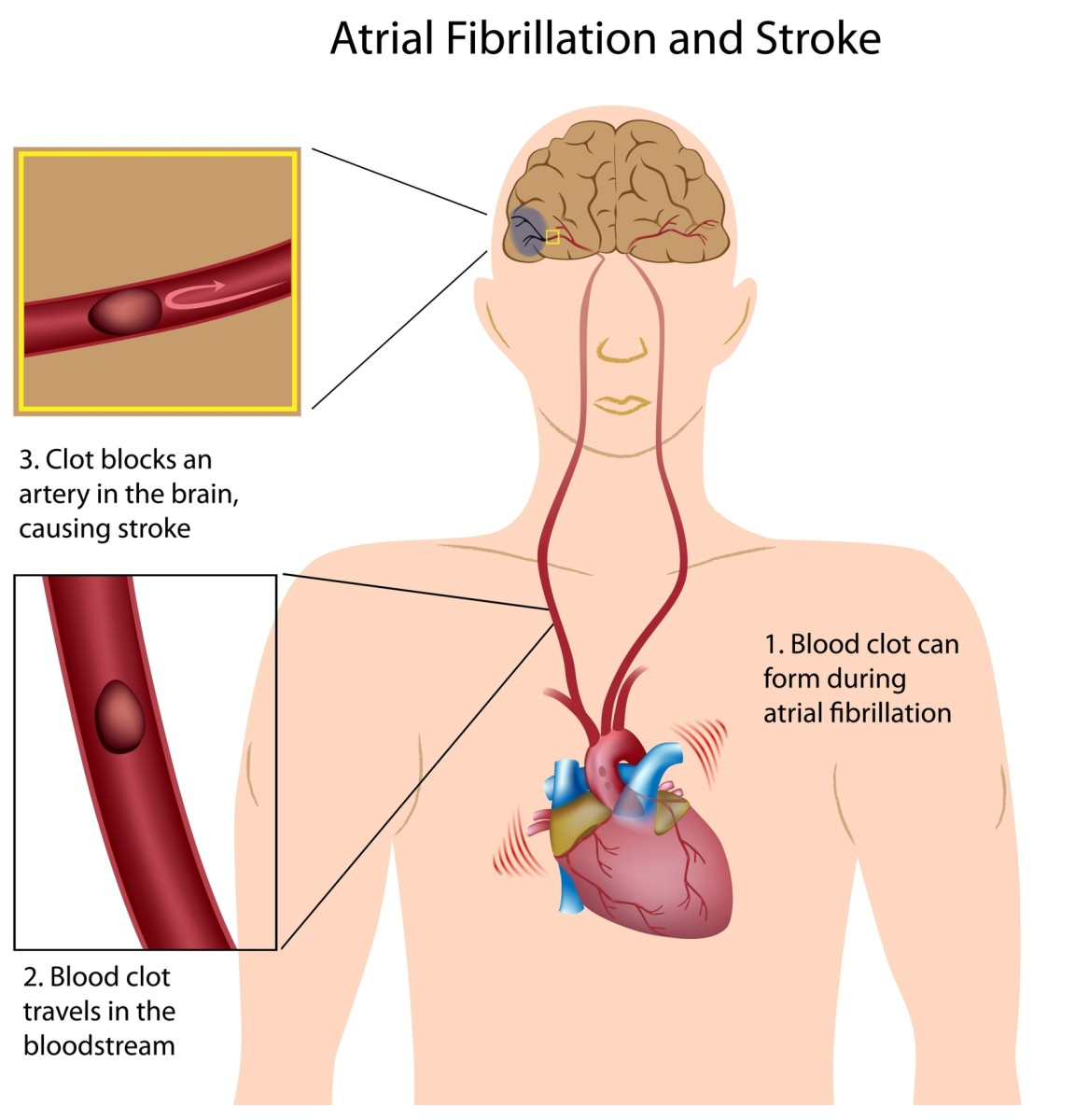 A stroke victim has blood tests and a CT scan to determine the extent of the stroke (damage).