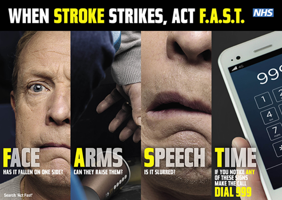 Here's what to look for if you suspect a stroke. Remember the acronym F.A.S.T. F: Facial drooping A: Arm weakness S: Speech difficulties T: Time to call emergency services