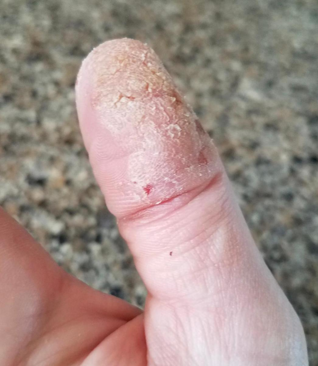 My thumb at one of its worst times.