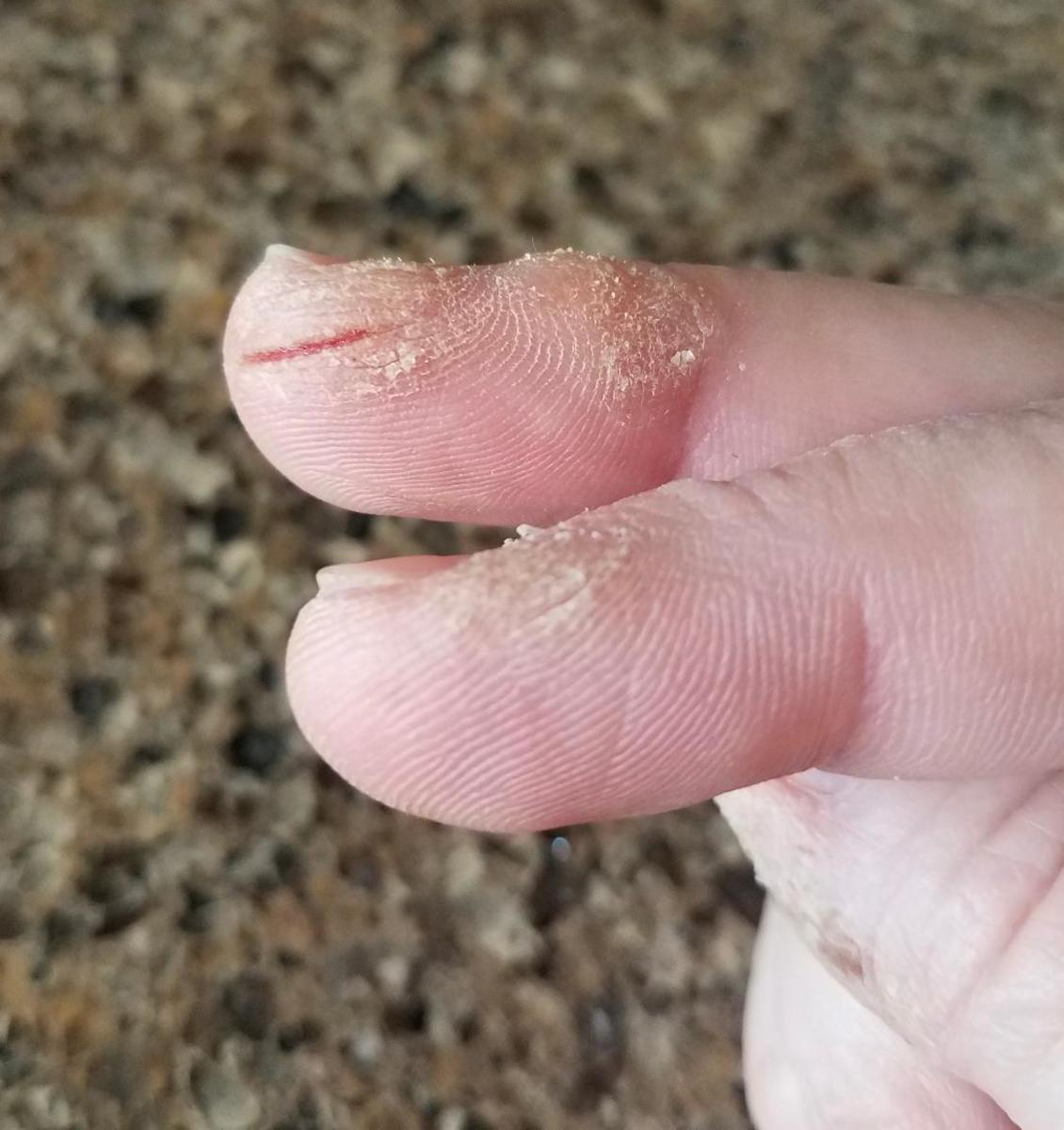 My splitting fingers.