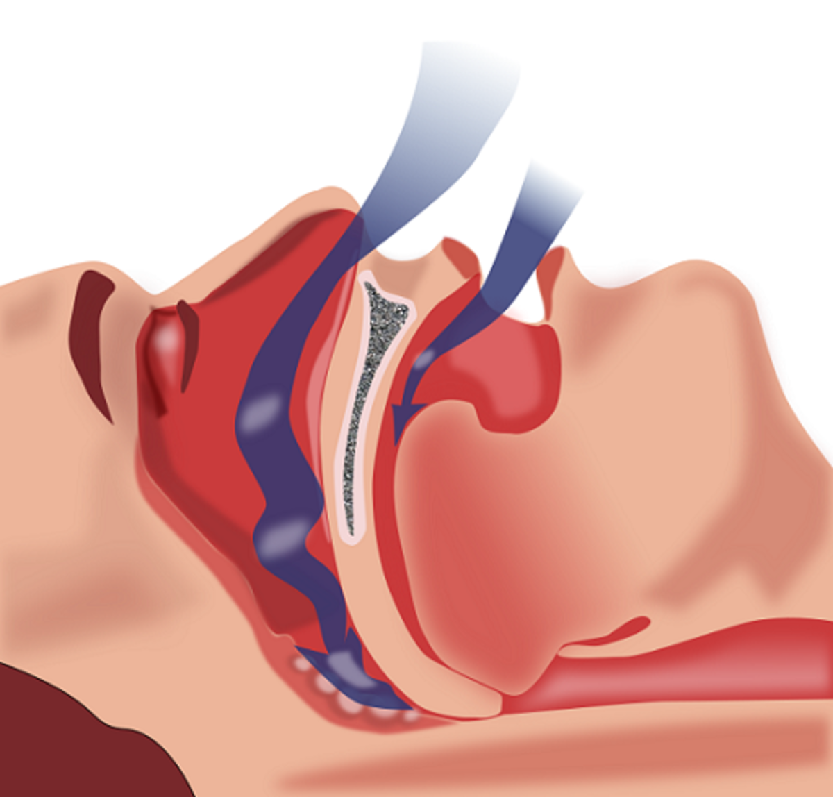 The snoring sound varies depending on how narrow the airway gets. The less space there is left for the air to pass through, the louder the snoring becomes.