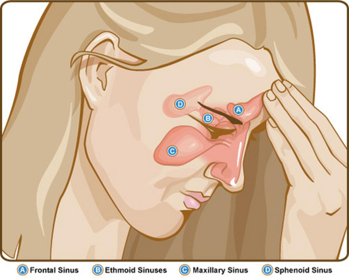 Sinus pressure and facial pain