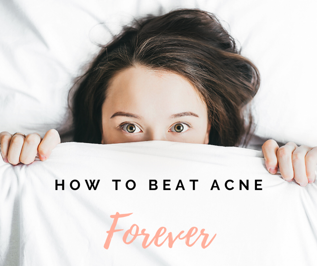 Follow along for three easy ways to banish acne. There's no need to hide your face anymore!