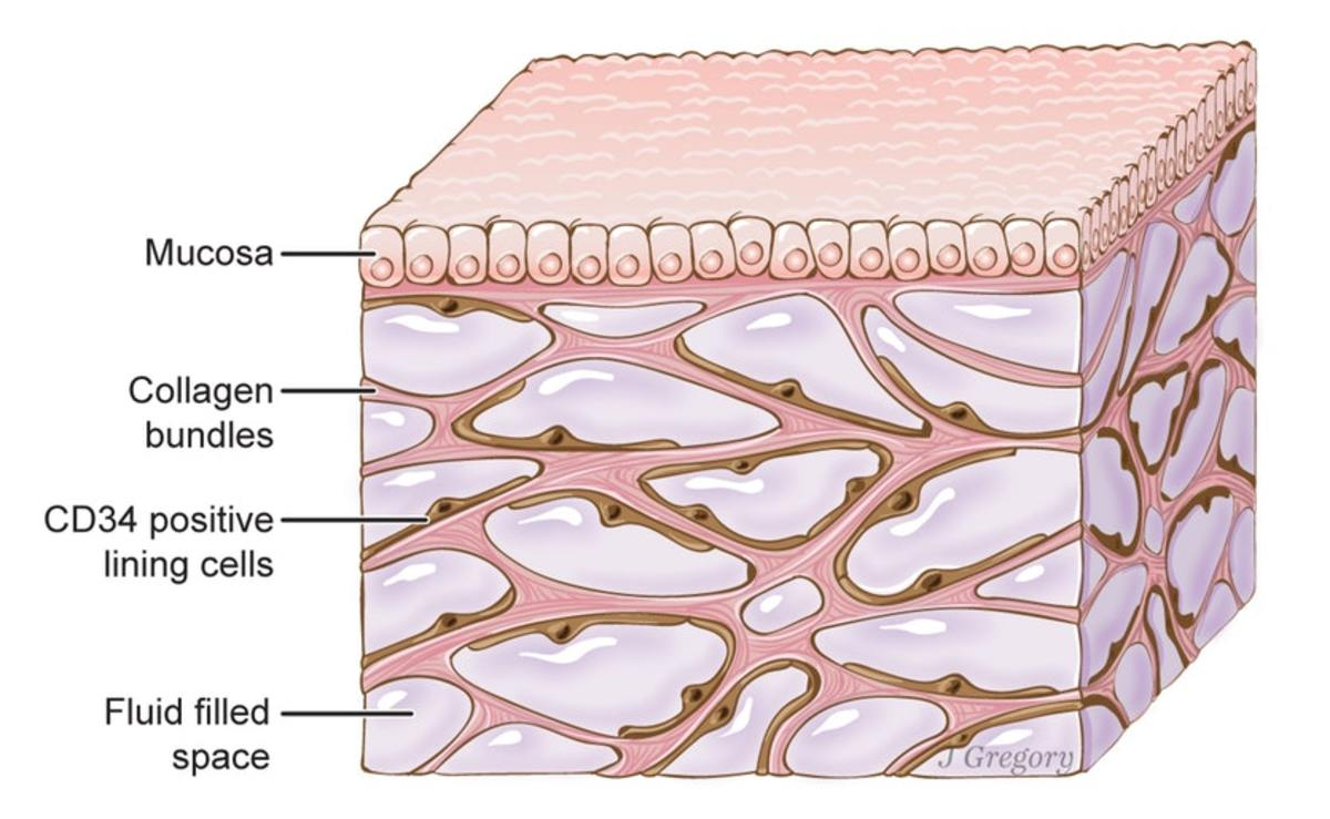 Dense connective tissue may contain fluid-filled spaces between the collagen fibres.