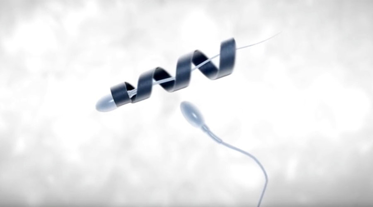 Spermbots: The Future of In Vivo Fertilisation?