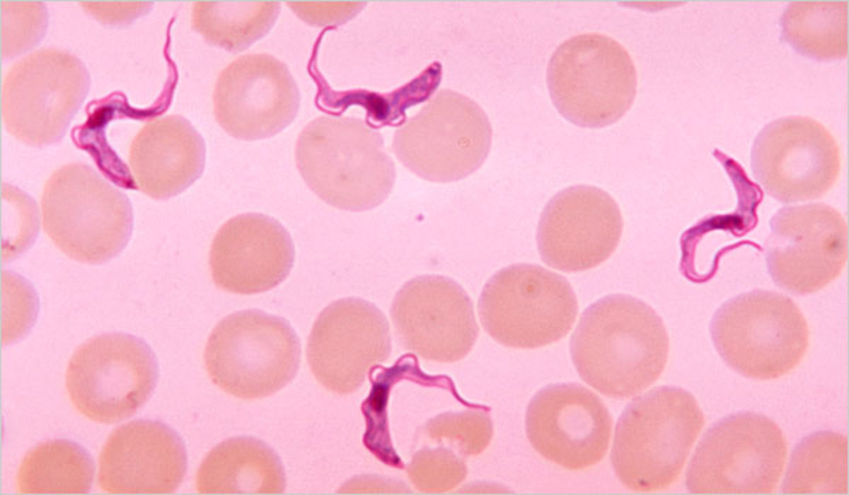 Trypanosomes found in a blood smear