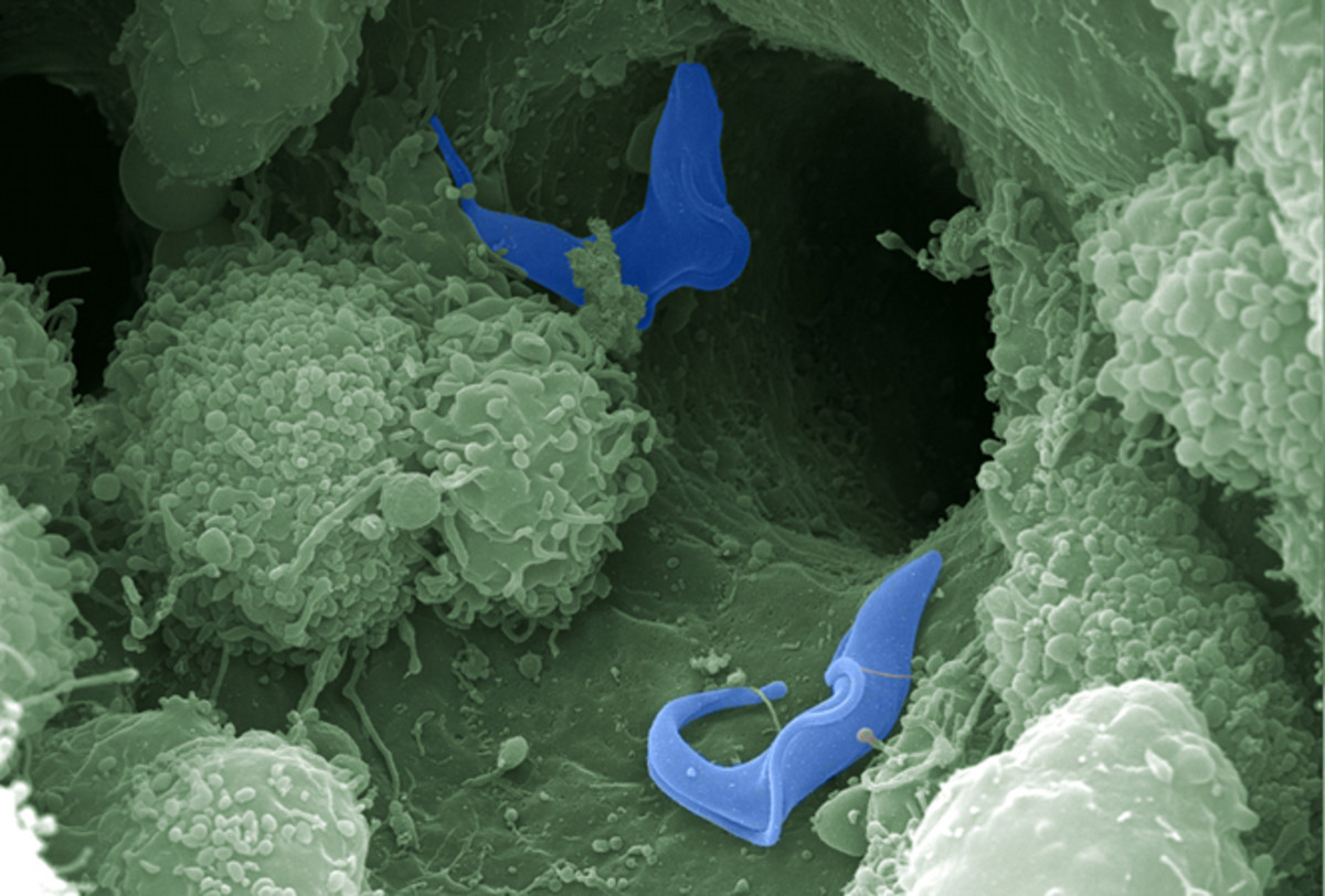 SEM image of trypanosoma cells next to host immune cells