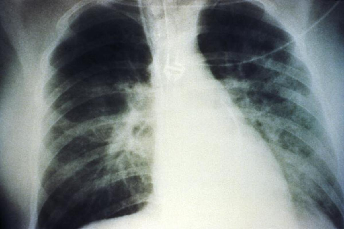 This AP chest x-ray reveals the mid-staged bilateral pulmonary effusion due to hantavirus pulmonary syndrome, or HPS.