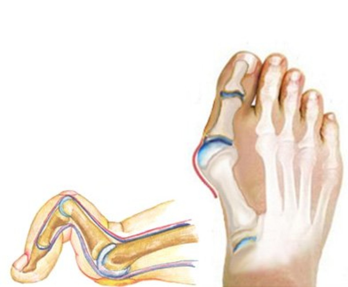 1. Hammertoe: contraction / bending of a toe through lack of space in a shoe.  2. Bunion:  sideways deviation of the big toe from wearing narrow shoes.