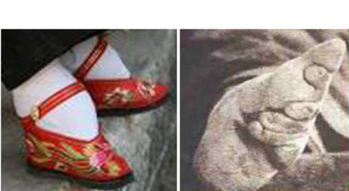 Like Chinese foot binding, narrow shoes cause permanent damage to the feet.
