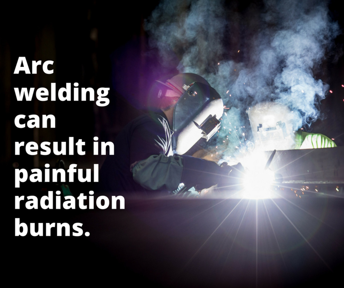 Most arc welders understand using a shield to protect the eyes but do not wear suitable gauntlets and flame-proof clothing to protect the arms and other exposed skin area from sparks and radiation.