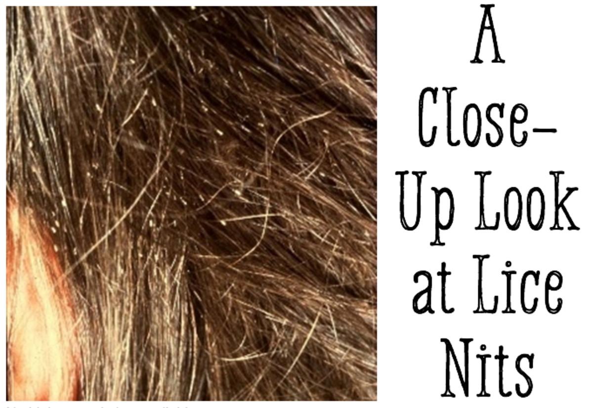 Nits: A Close-Up View