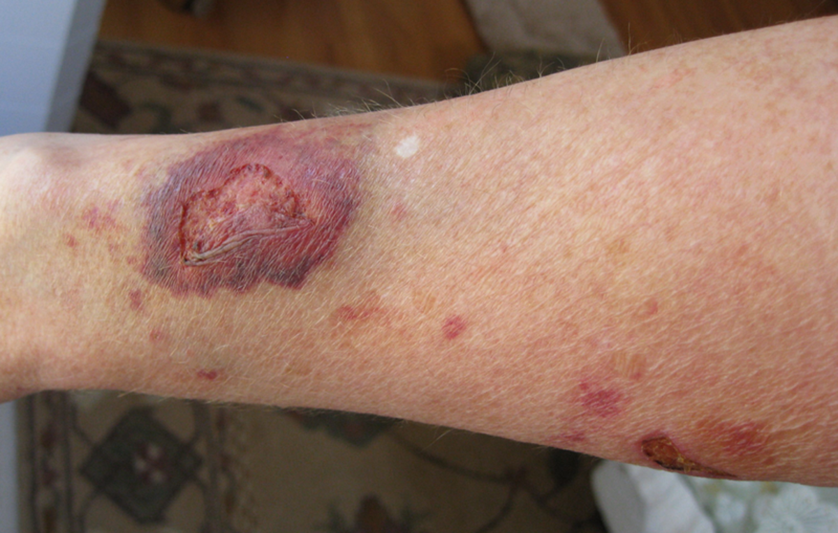 A scary portrayal of long-term use of topical steroids.