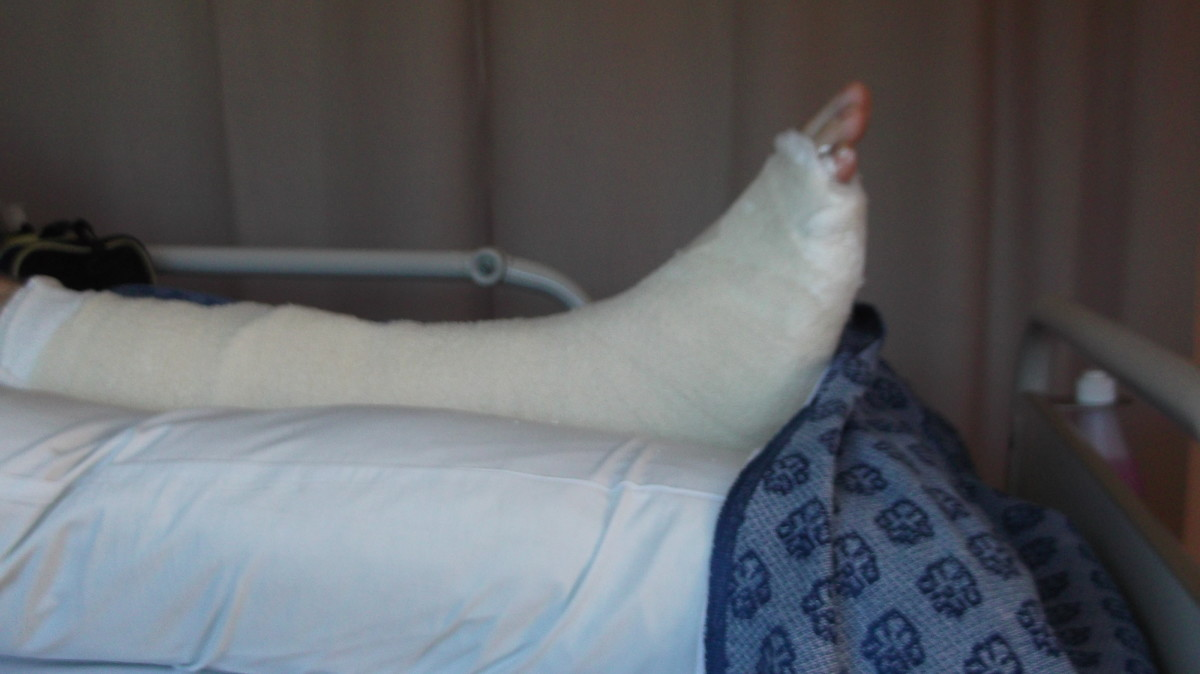 Even in a plaster cast, my husband's broken ankle looked smaller than immediately after his accident when his ankle was swelling.