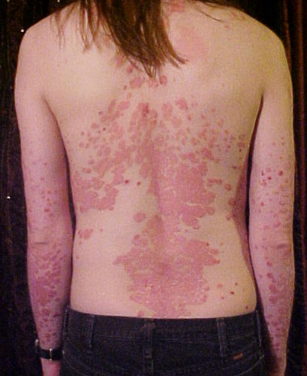Psoriasis on the back.  Very sightly but this can be treated.