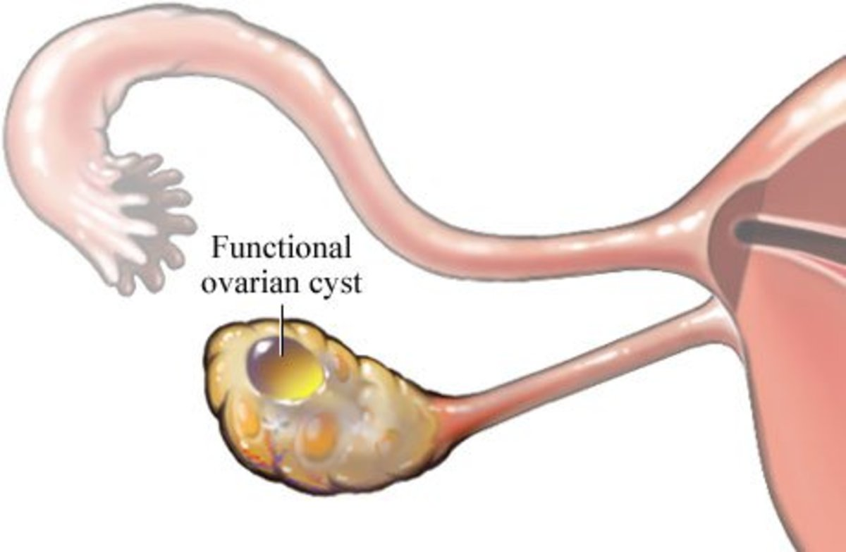 Ovarian cysts are generally benign, but in some cases, they can cause immense pain, nausea, and late periods.