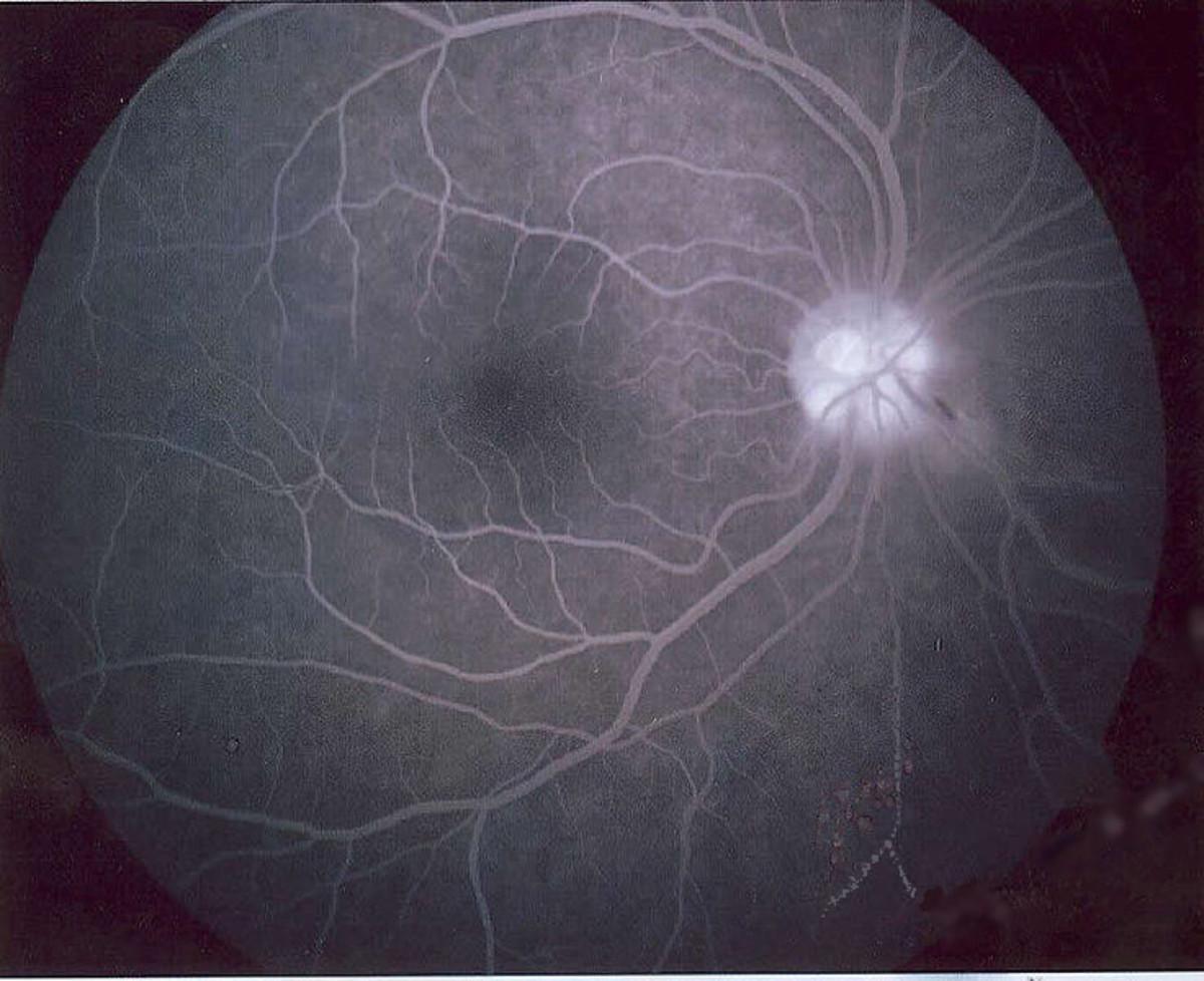 An image of a normal fluorescein angiogram