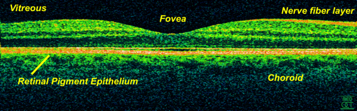 An image of an OCT scan, the fovea is the center of the macula.