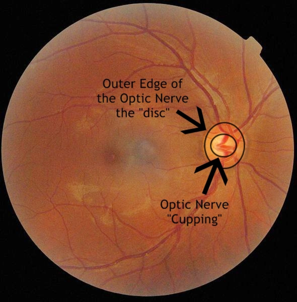 Increased pressure in the eye causes cupping of the optic nerve. Think of the optic nerve as a doughnut with the center hole being the cupping. Increased pressure in the eye causes that doughnut hole to grow, permanently damaging nerve fibers.