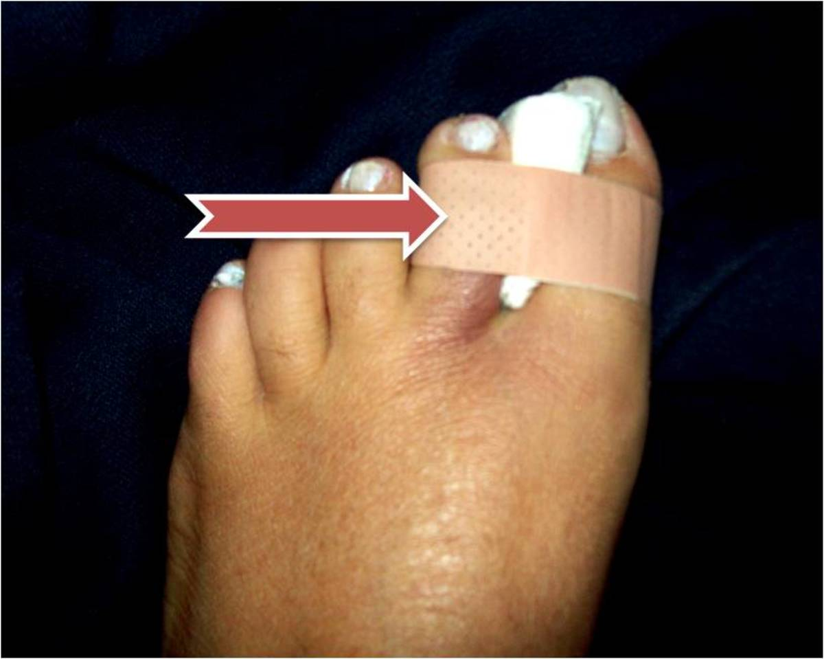 Use a band-aid or tape to comfortably tape the toes together