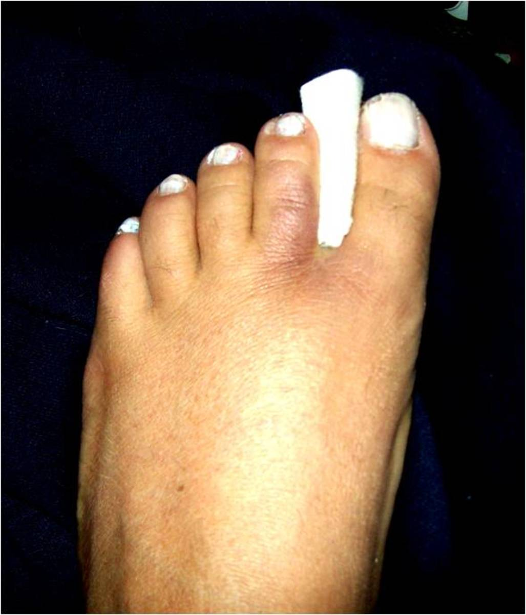 Place gauze or padding between the broken toe and the next larger toe