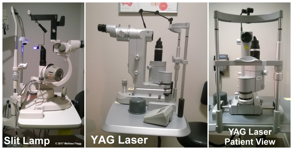 From Left to Right: A standard slit lamp, a YAG Laser and a view of the YAG laser from where the patient sits.