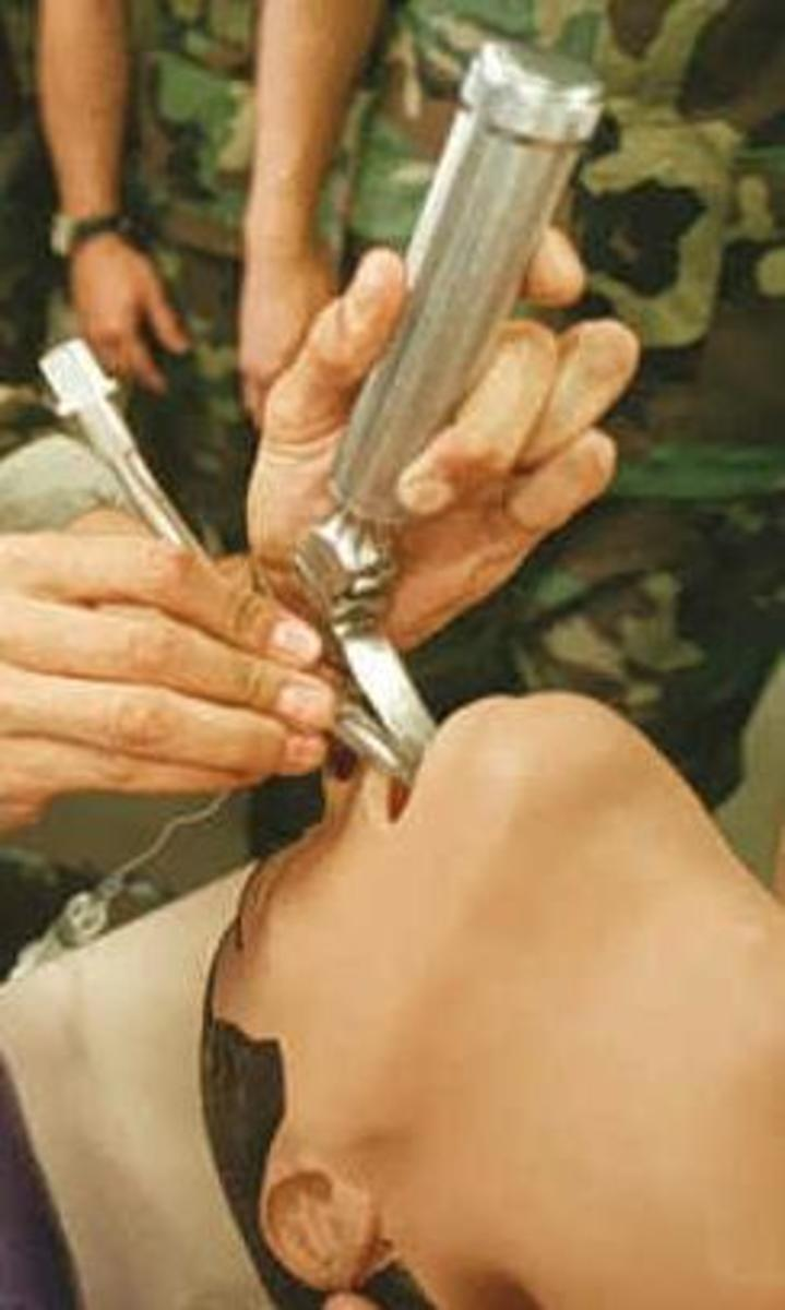 The laryngoscope being used to place an endotracheal tube: This process is called intubation. The laryngoscope may contact the upper teeth, but usually no pressure is applied to transmitted to the teeth.