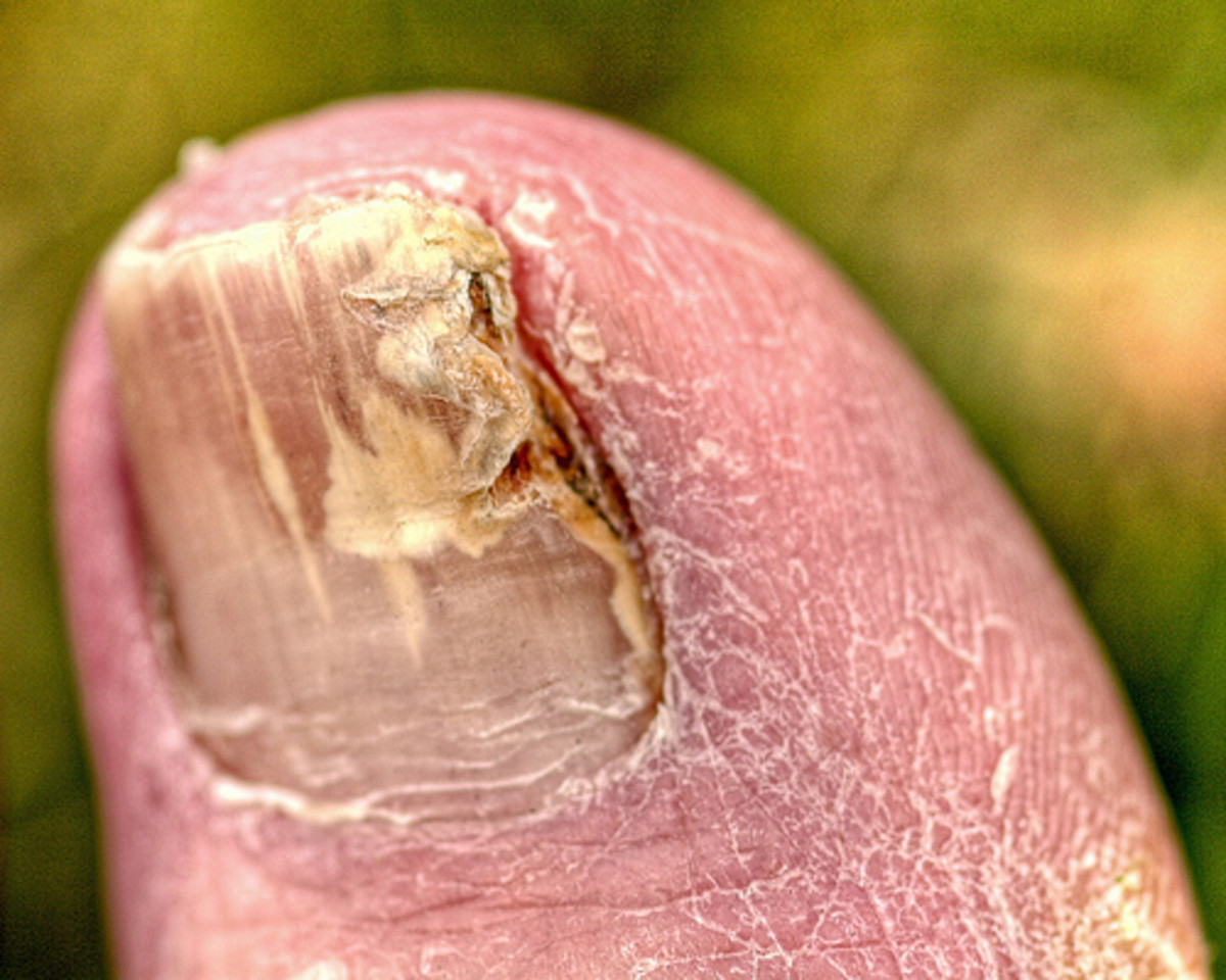 An example of an advanced case of toenail fungus